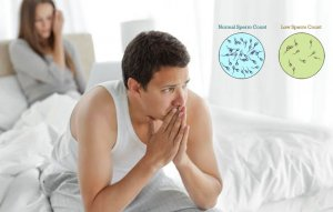 male infertility low sperm count Treatment