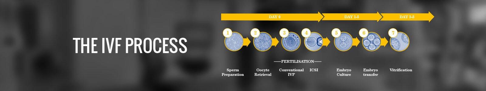 IVF Process Delhi
